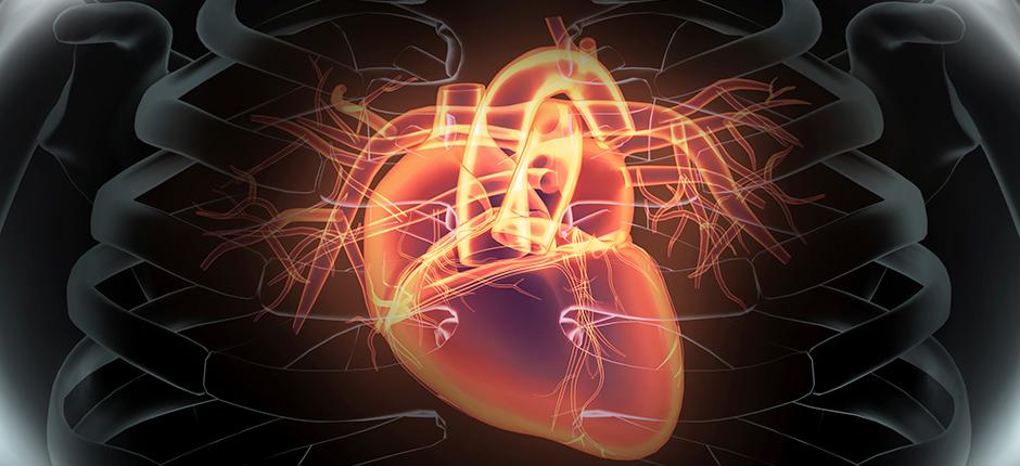 sera-un-infarto-cardiaco